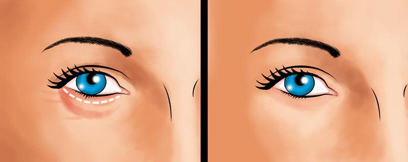 Eyelid surgery lower eyelid incision illustration