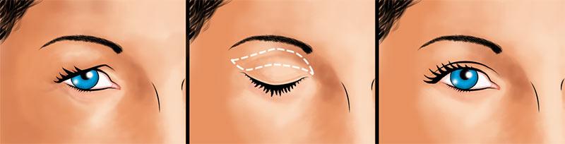 Eyelid surgery upper eyelid incision illustration
