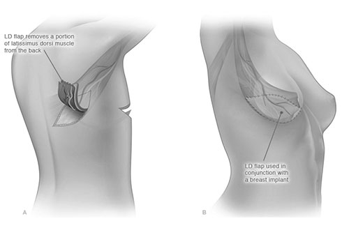 Lat Flap Breast Reconstruction Illustration