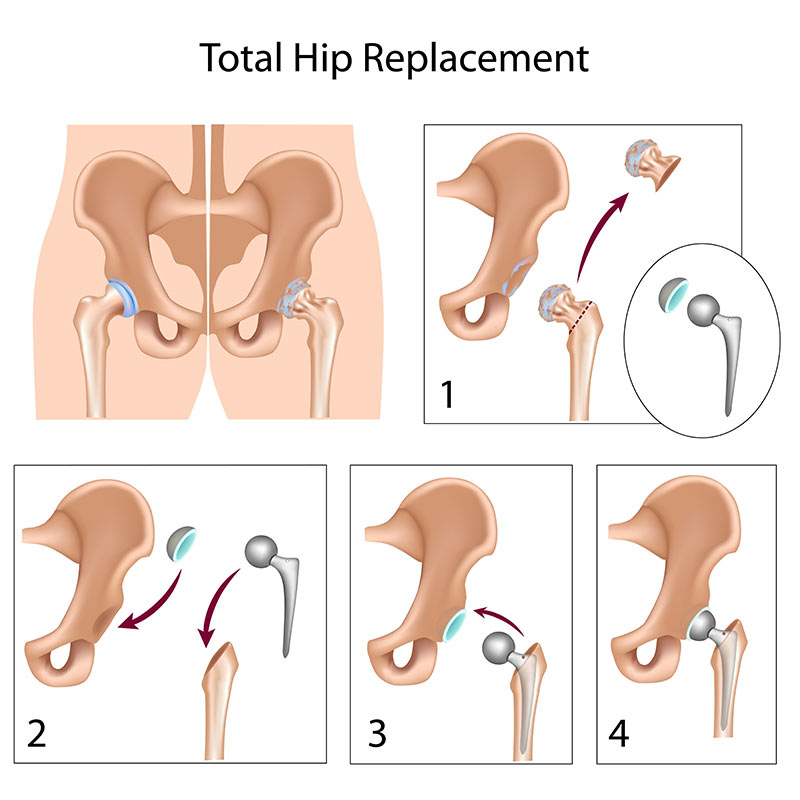 Total Hip Replacement Illustration