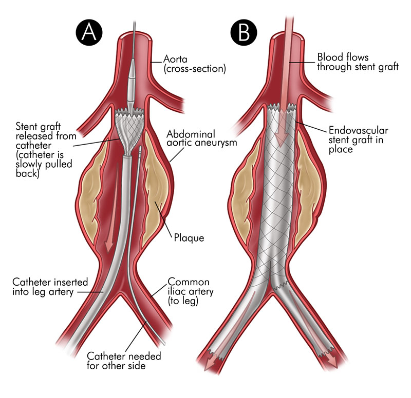 Abdominal Aneurysm Stent Illustration