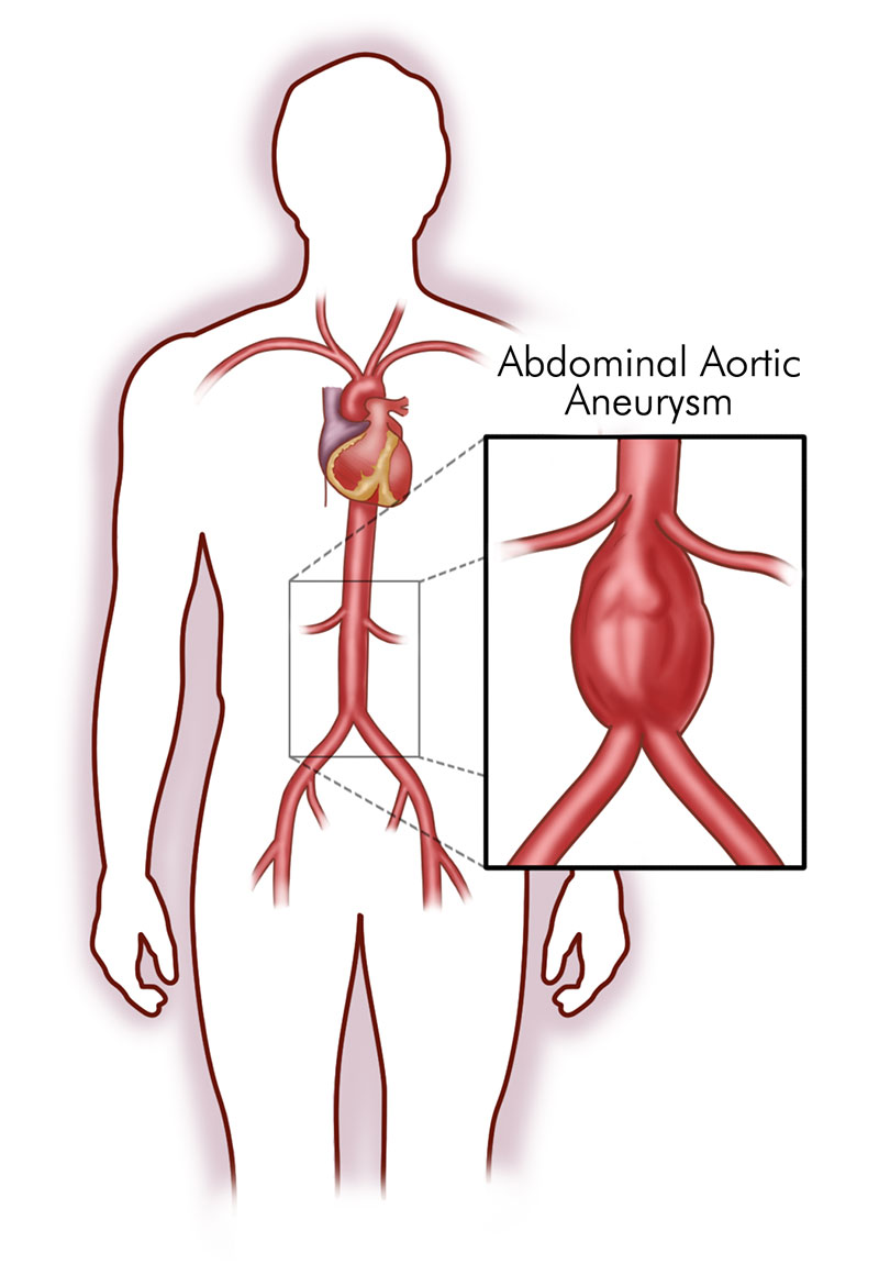 abdominal aortic aneurysm illustration