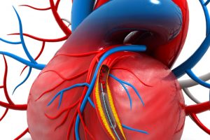 Cardiovascular Stent Placement