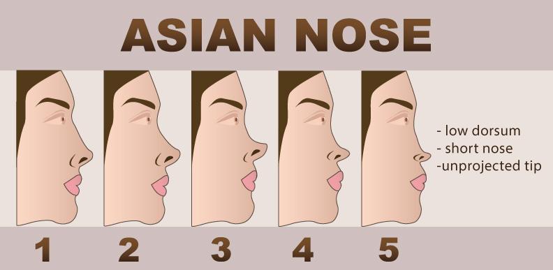 Nose Augmentation - Asian Nose Illustration