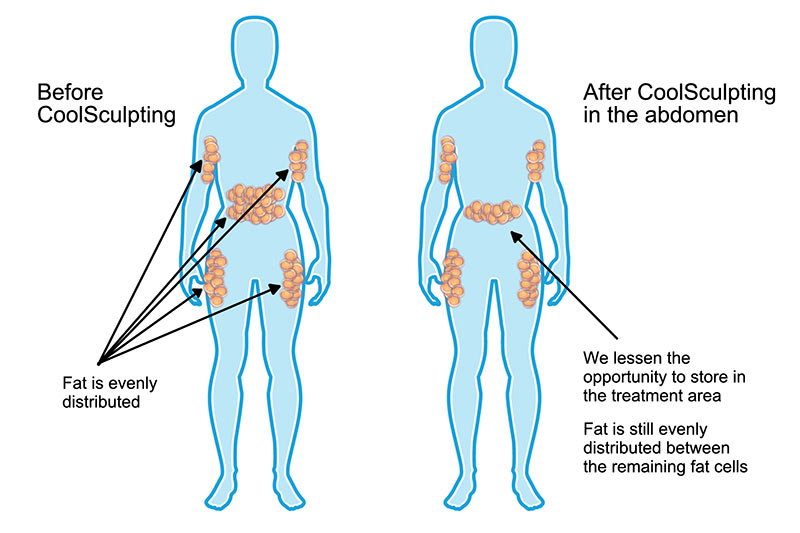 Coolsculpting Before and After Illustration