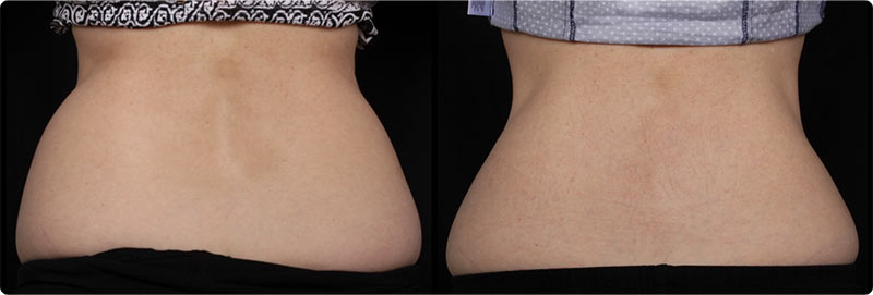 Coolsculpting Before and After Result