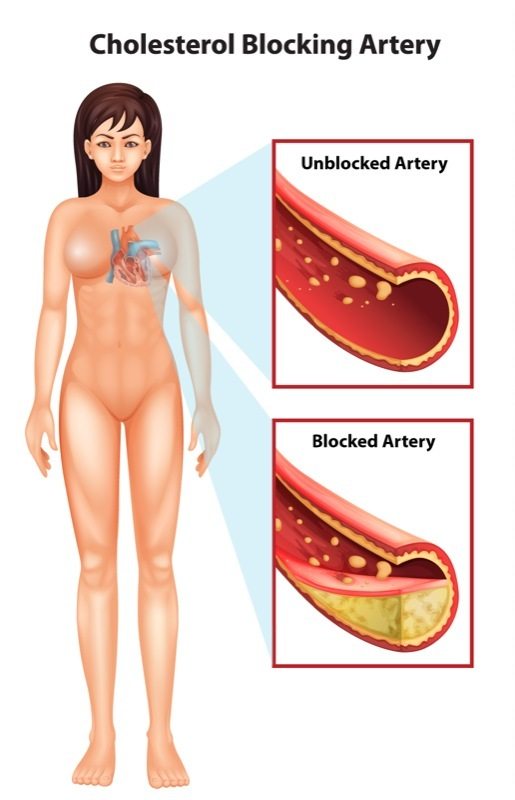 Cholesterol blocking artery illustration