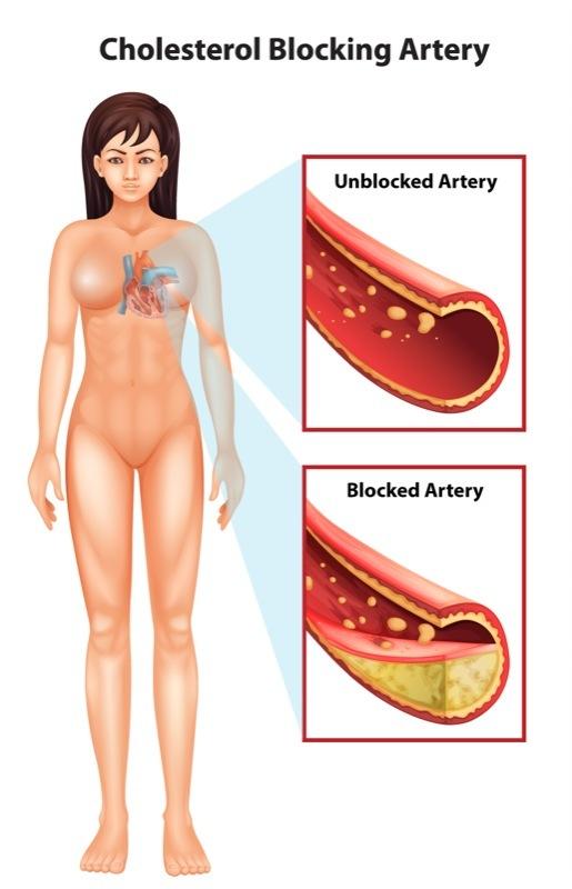 Cholesterol blocking artery illustration