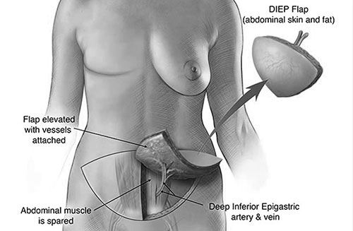 Breast Reconstruction DIEP Flap