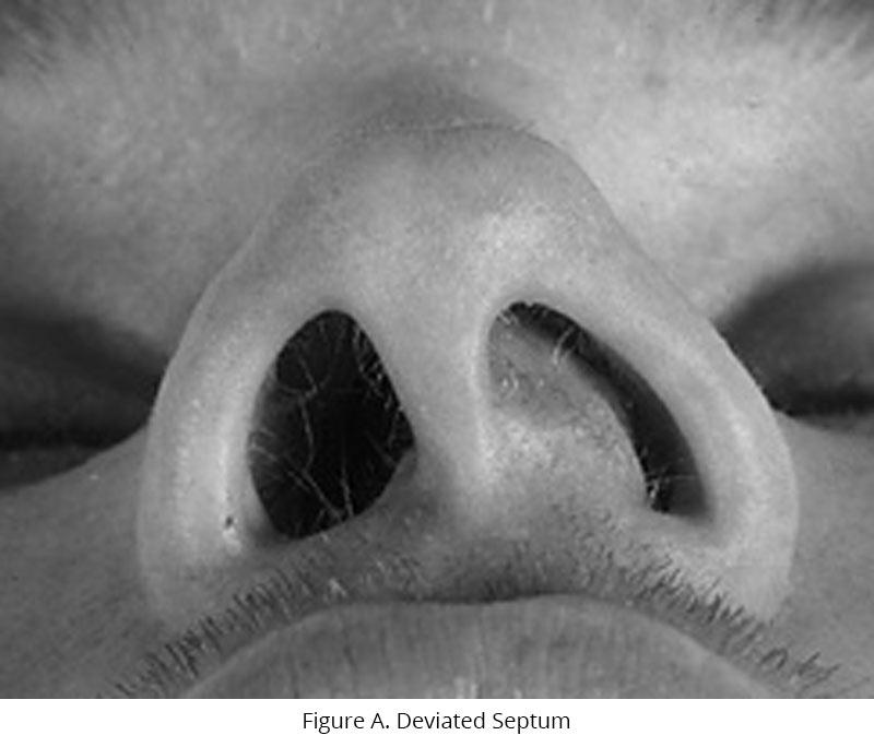 Deviated Septum Illustration