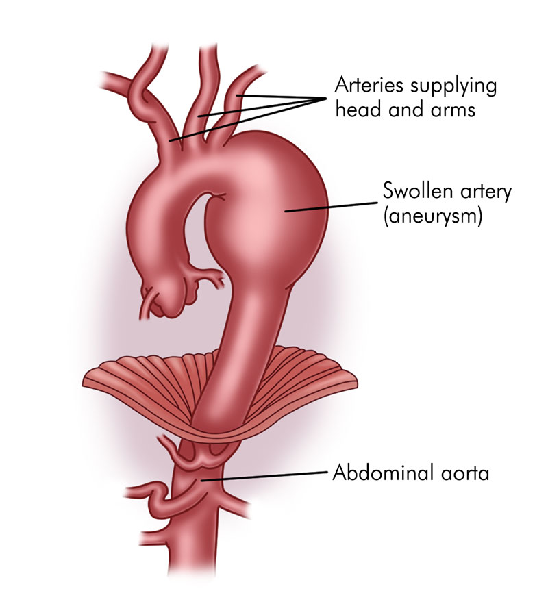 Endovascular aneurysm repair swollen artery illustration
