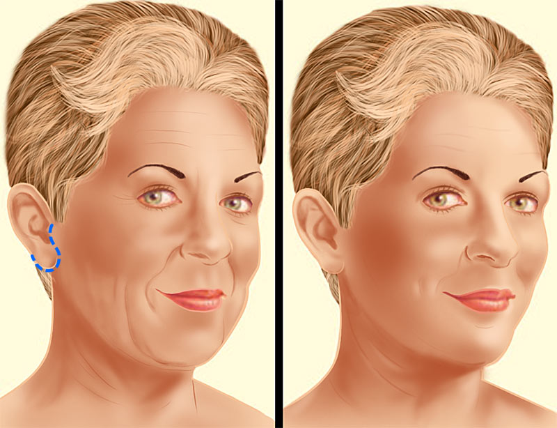 Face Lift Surgery Limited Incision Illustration