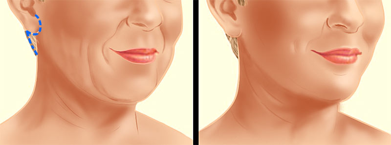Face Lift Neck Lift Incision Illustration