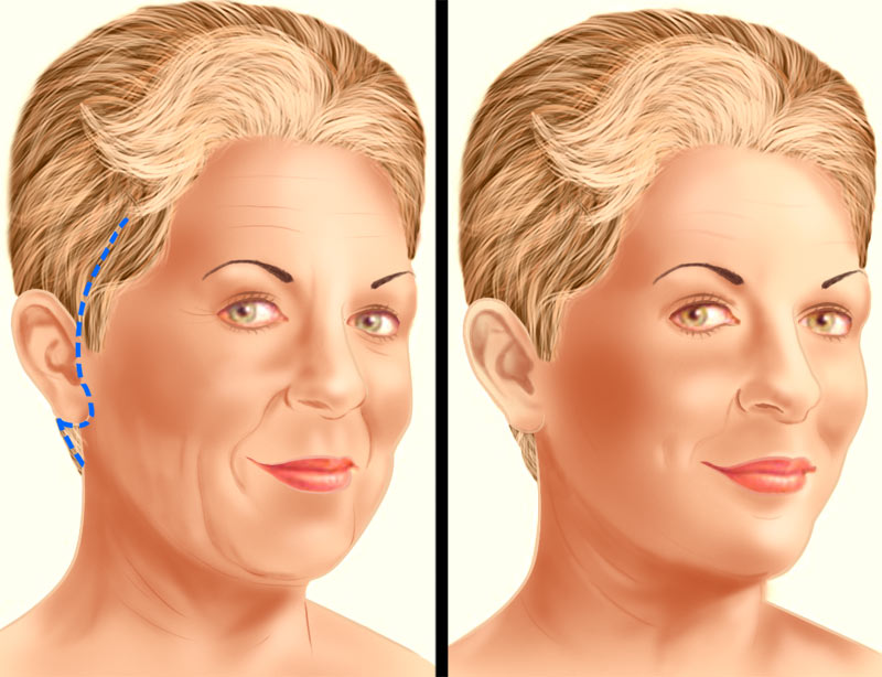 Face lift traditional incision illustration