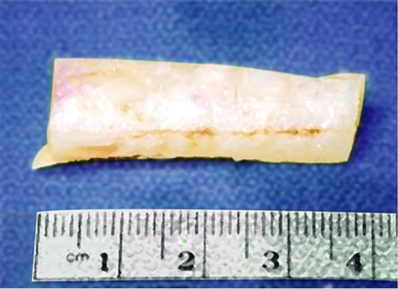 Harvested Rib Cartilage Sample used for Infra-mammary Incision for Nose Augmentation