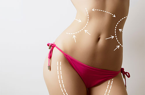 Liposuction in Thailand