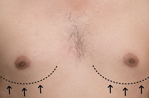 Male Breast Reduction at Yanhee Hospital