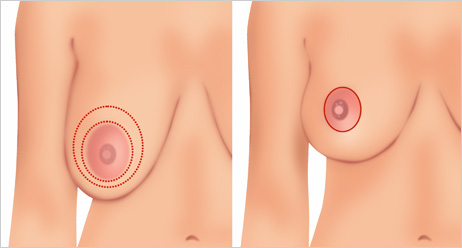 Breast Lift - Peri-Areolar Technique