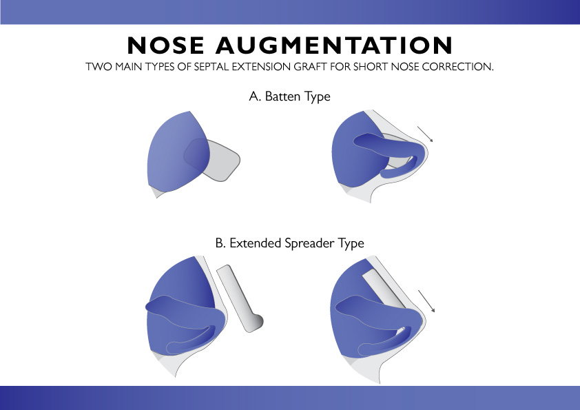 Types of Nose Augmentation