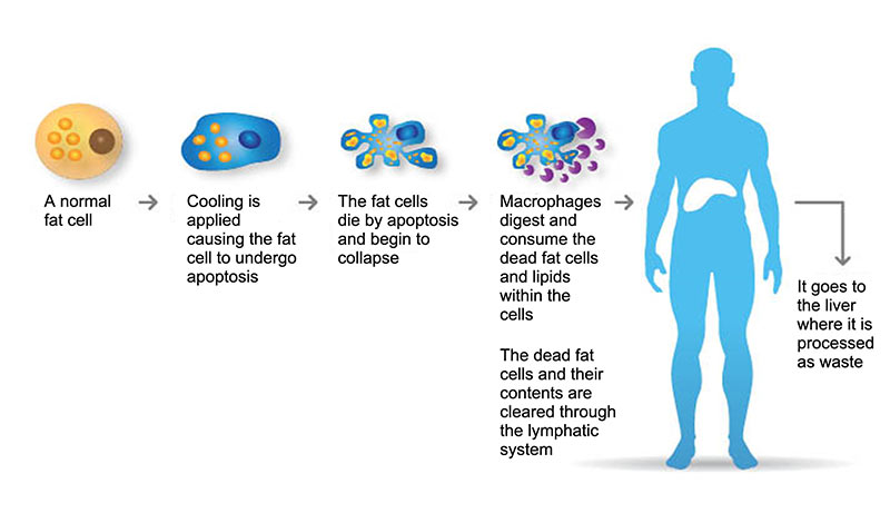 Coolsculpting resorption of fat illustration