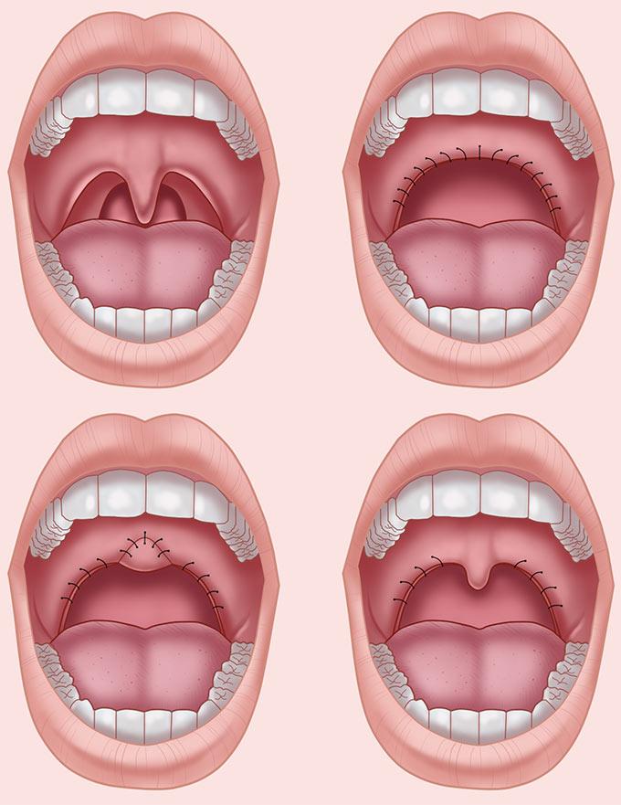 Uvulopalatopharyngoplasty Illustration