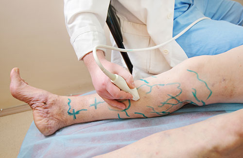 varicose vein treatment illustration